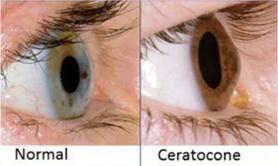 37575058f548f Ceratocone   Clínica Lúmina Oftalmo
